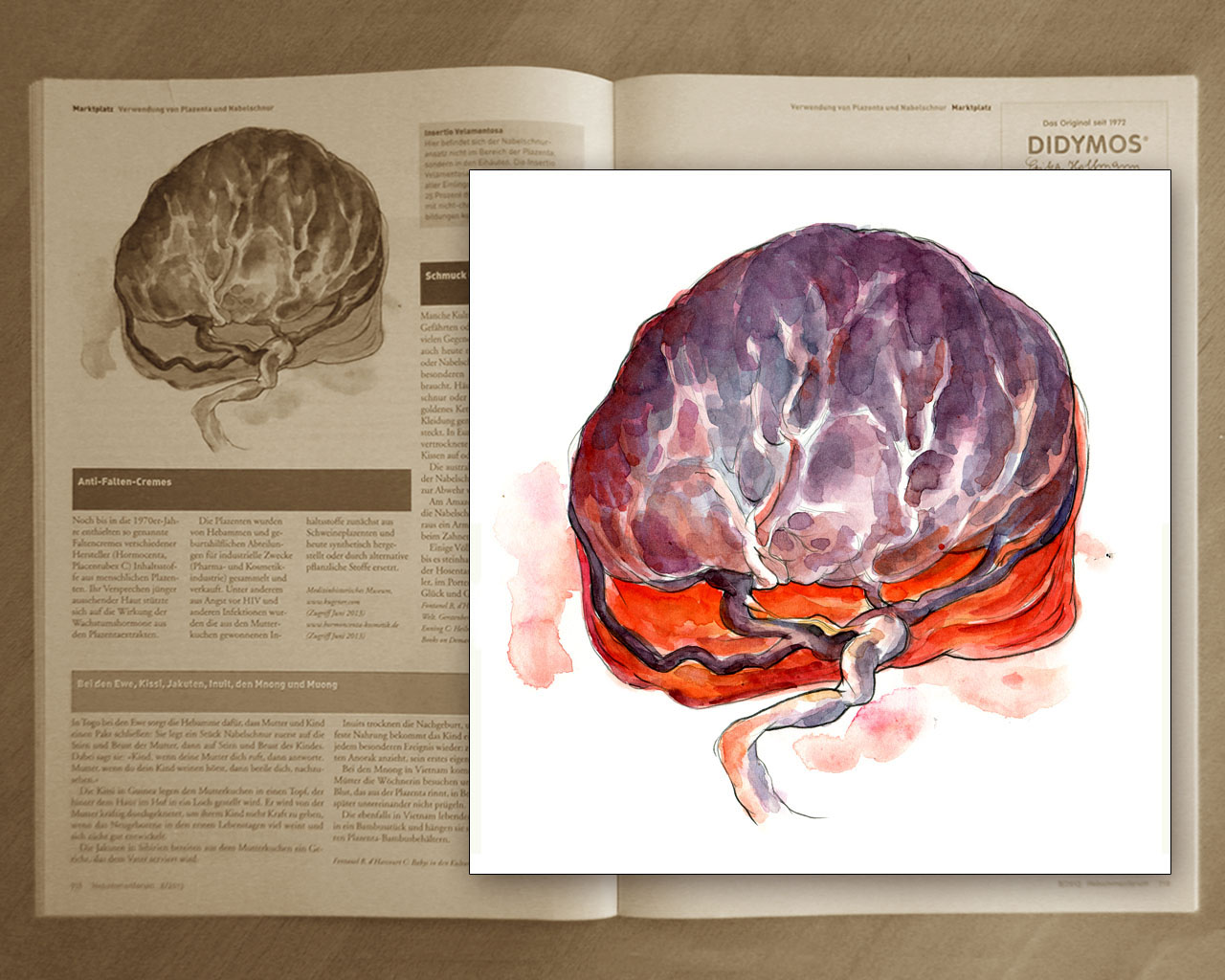 placenta with insertio velamentosa